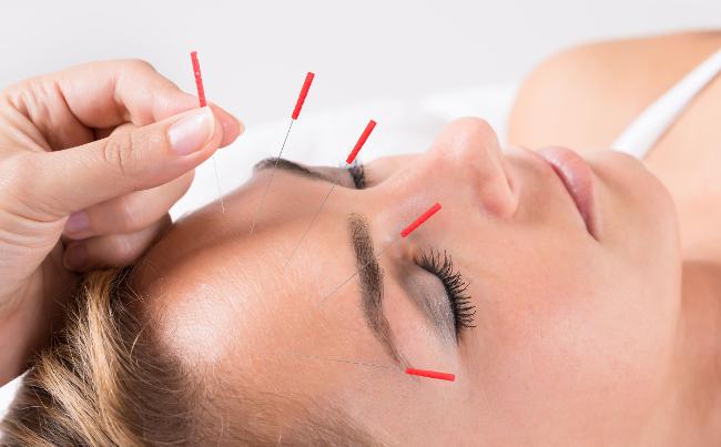 Een vrouw ondergaat een cosmetische acupunctuur behandeling te Leuven.